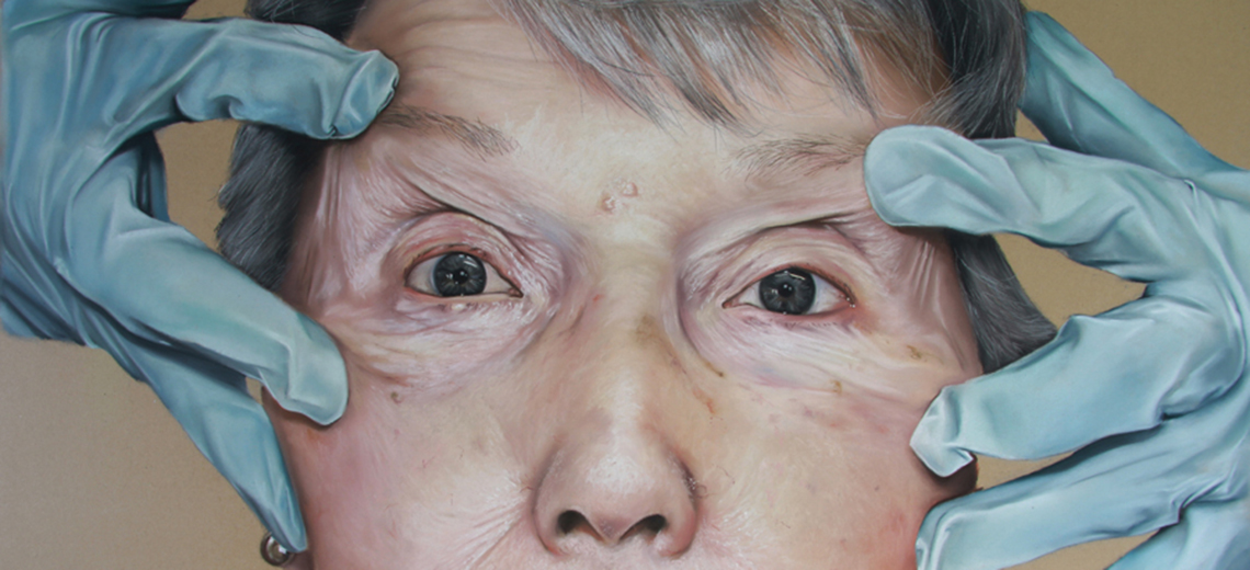 A close up of an older woman's face. Hands in blue surgical gloves pull the skin taut around her eyes.